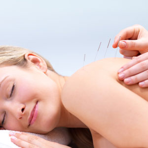 What to do before & after an Acupuncture treatment.